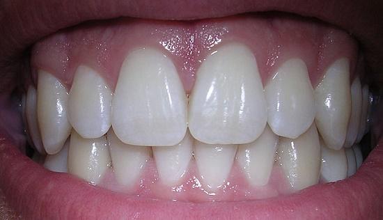 Si želite belih zob?