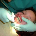 Kdaj potrebujete zobni aparat?